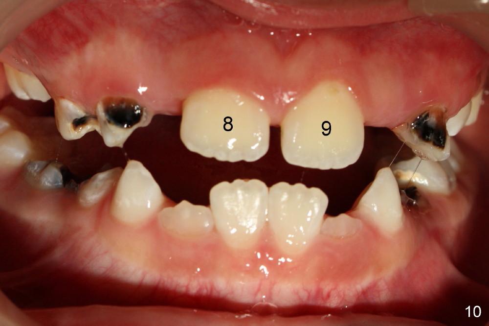 牙科知識人人須知(5 62 ) 两个正中多生牙