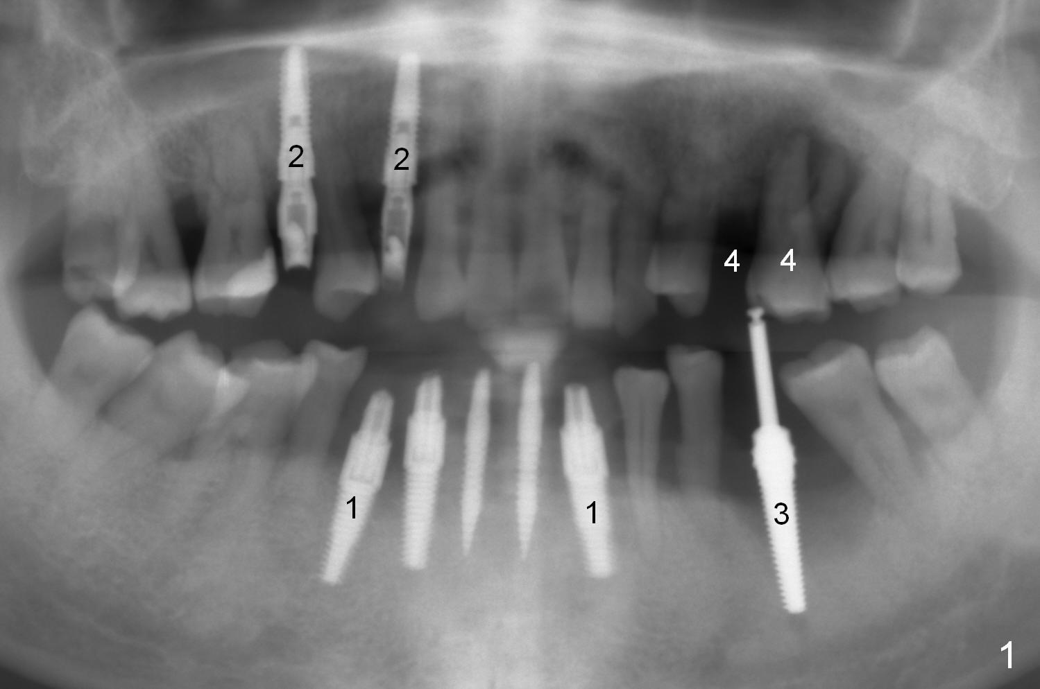 Several Implants For Gum Disease Dental Education Lecture