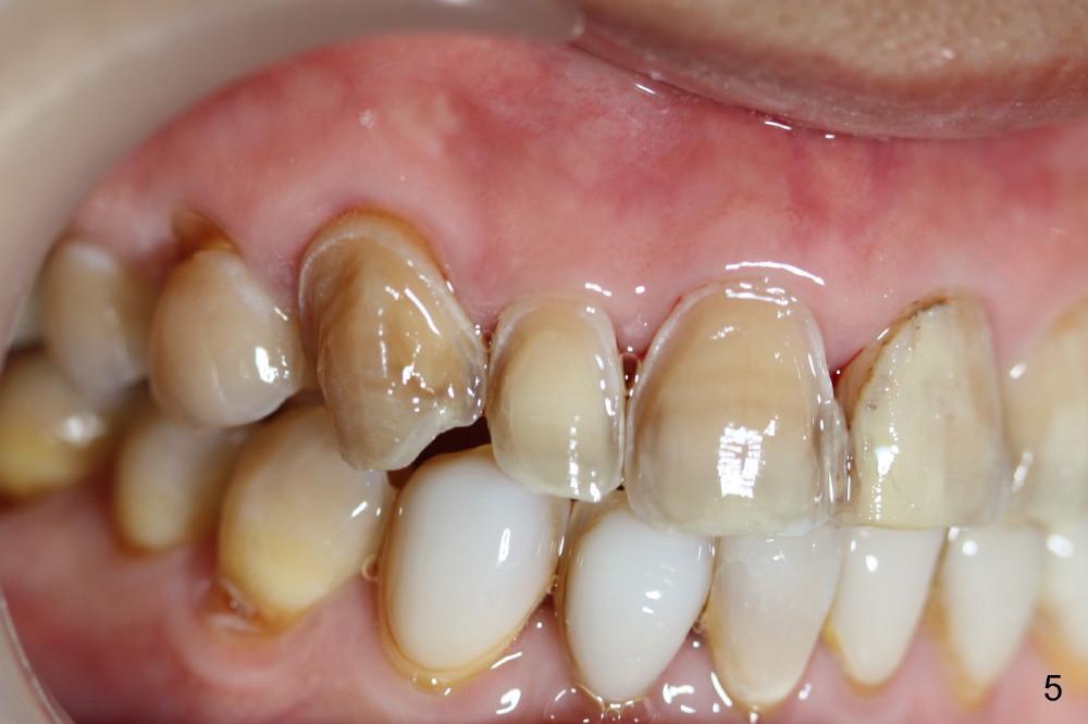Cosmetic Veneer Preparation Dental Education Lecture