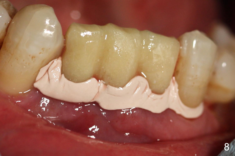 periodontal dressing